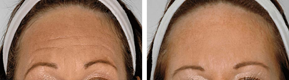 Refresh Skin Clinic Bendigo worry lines forehead