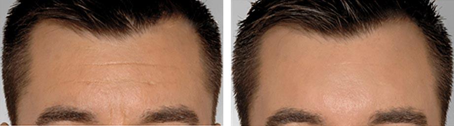 Refresh Skin Clinic Bendigo worry lines forehead
