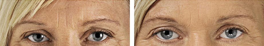 Refresh Skin Clinic Bendigo frown lines