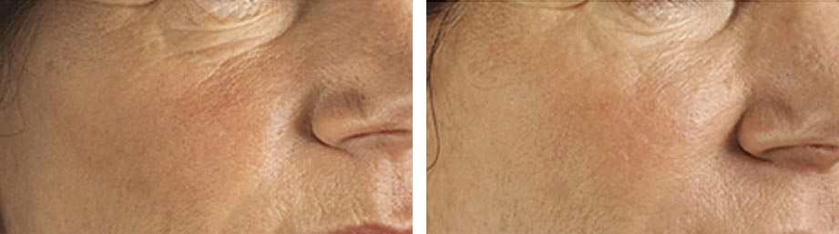 Refresh Skin Clinic Bendigo cheek augmentation