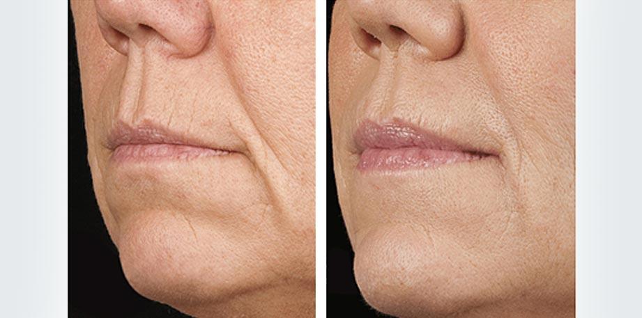 Refresh Skin Clinic Bendigo nose to mouth