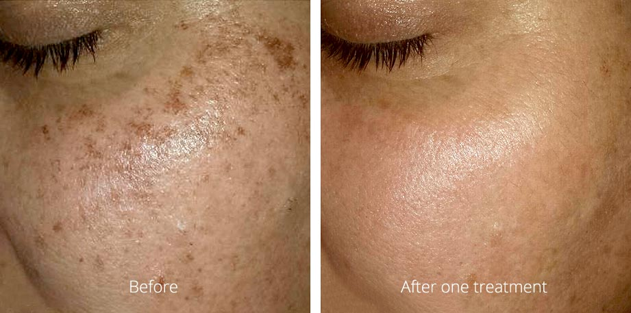 Refresh Skin Clinic Bendigo skin tone correction