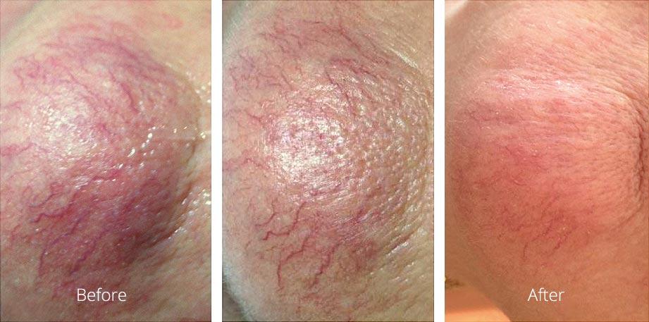 Refresh Skin Clinic Bendigo vascular treatments redness reduction