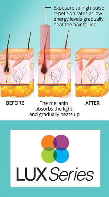 Refresh Skin Clinic Bendigo permanent hair removal reduction